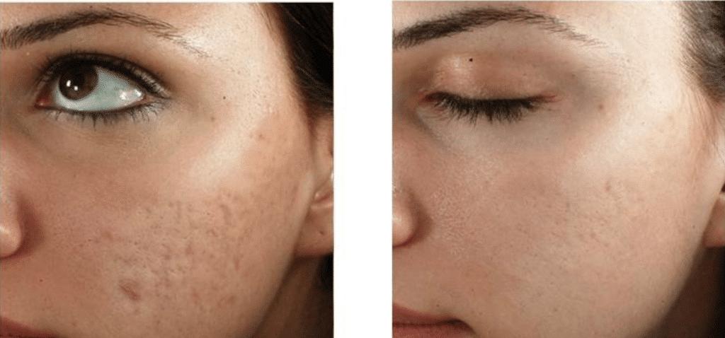 Medische microneedling pigmentatie celaanmaak proskinclinic