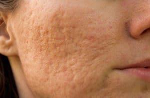 litteken acne behandeling meise