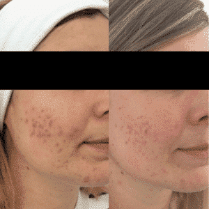 acne-behandeling-peelings
