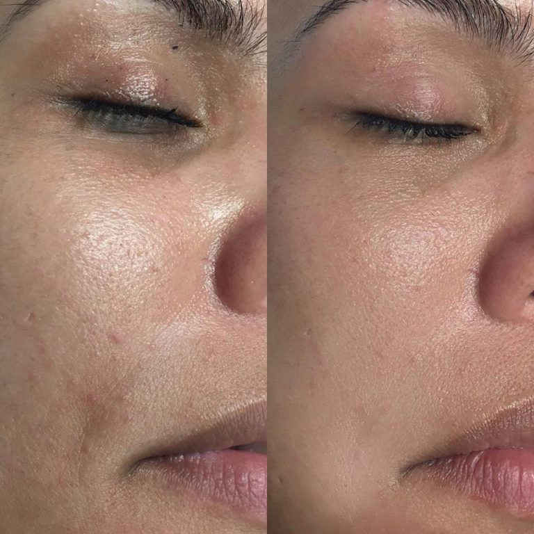 bb-glow-meise-proskinclinic-zuivere-huid